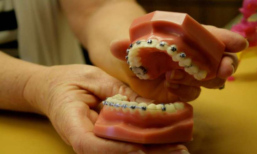 Aparat ortodontyczny