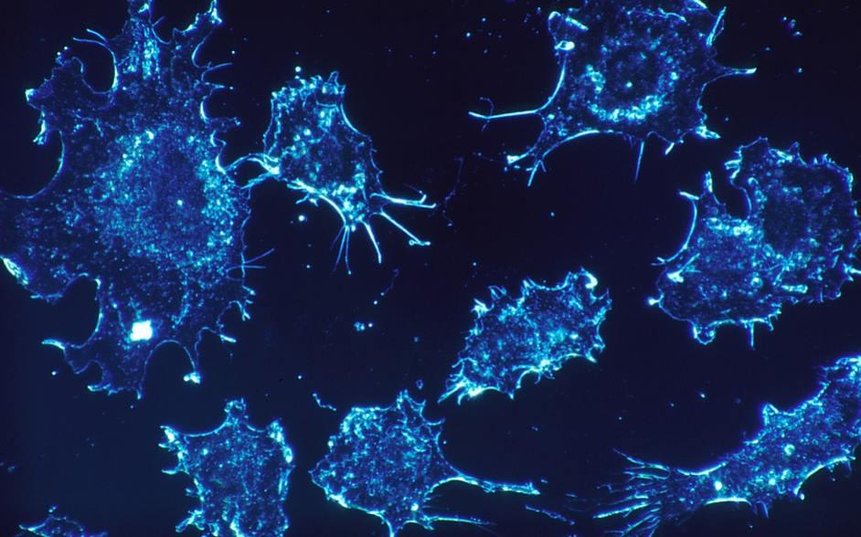 Komórki nowotworowe