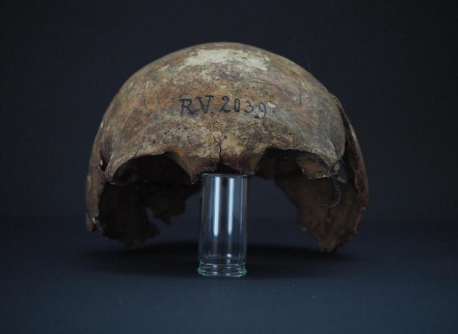 Najstarszy szczep dżumy znaleziony w szczątkach mężczyzny sprzed 5000 lat