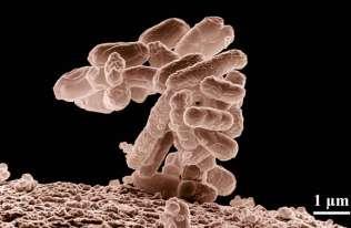 Bakterie mogą zmieniać kształt, by uniknąć antybiotyków