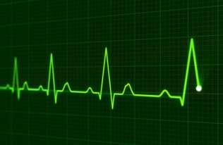 EKG serca