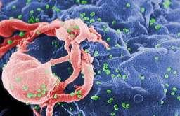Obraz z mikroskopu elektronowego pączkującego wirusa HIV-1