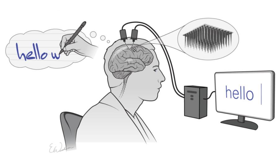 Nowy interfejs mózg-komputer zamienia myśli na tekst
