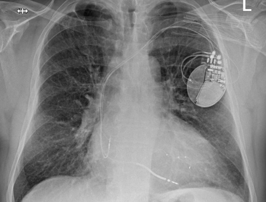 Terapia resynchronizująca pomoże słabemu sercu