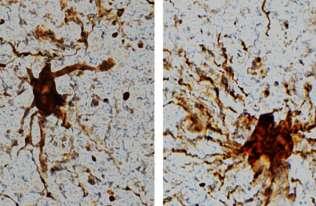"""Badania pokazują, że niektóre komórki w mózgu """"ożywają"""" po śmierci"""
