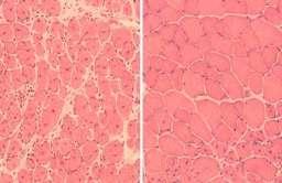 Komórki mięśniowe myszy pokazujące odwrócenie procesu starzenia