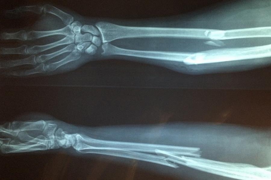 Obraz rentgenowski złamanej kości