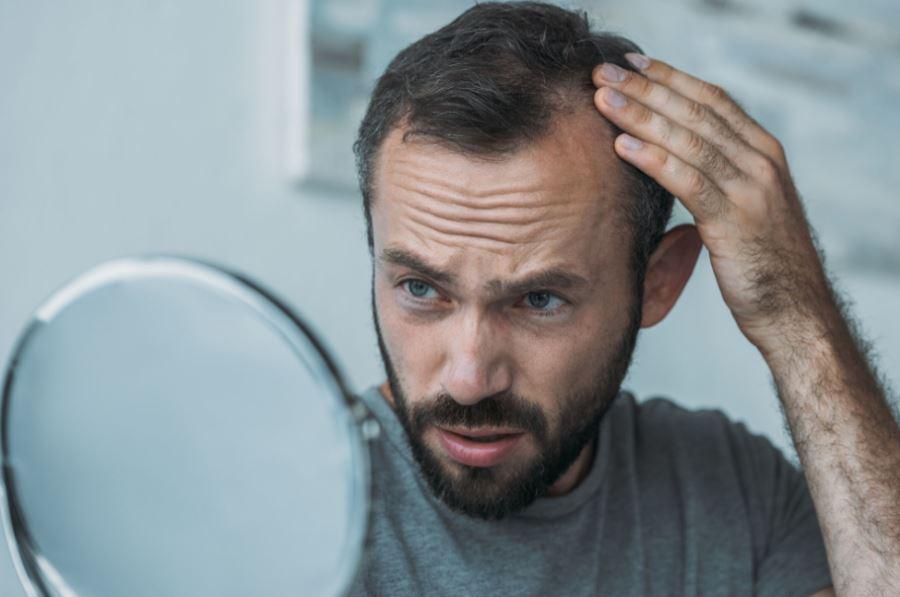Tatuaż na włosy - mikropigmentacja skóry głowy