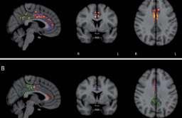 Tomografia komputerowa osoby chorej na Alzheimera