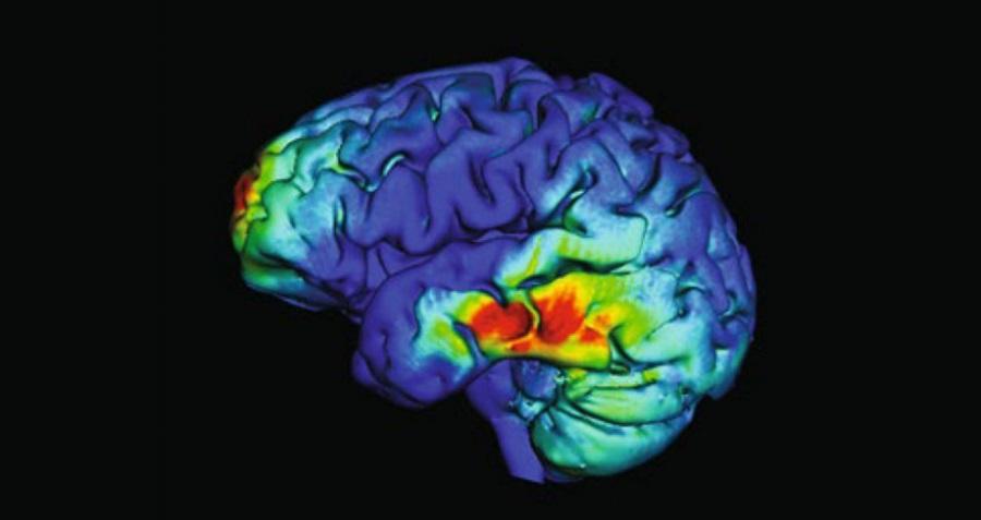 Obraz aktywności mózgu