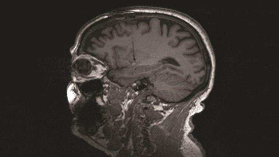 Skan mózgu