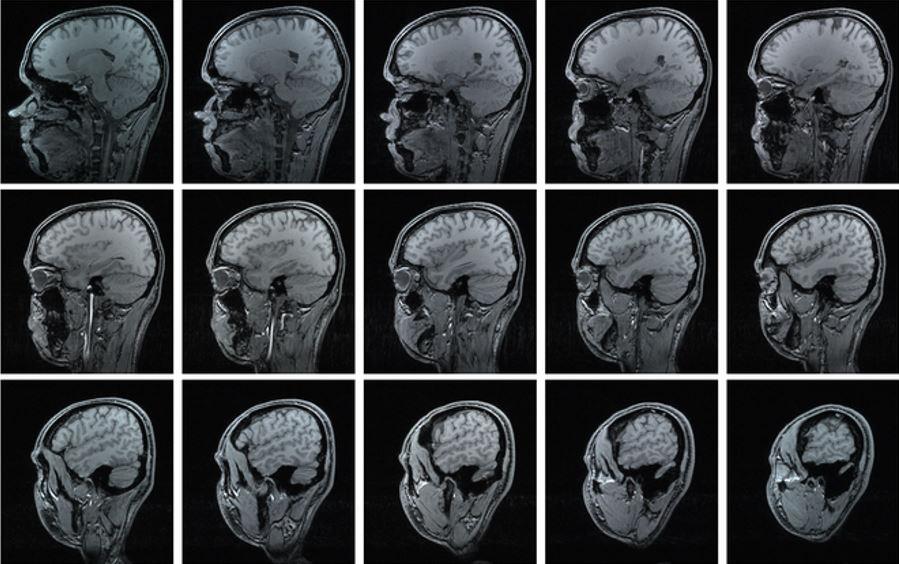 COVID-19 może powodować ubytek istoty szarej w mózgu