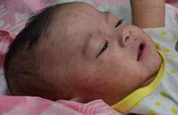 Dziecko chore na odrę
