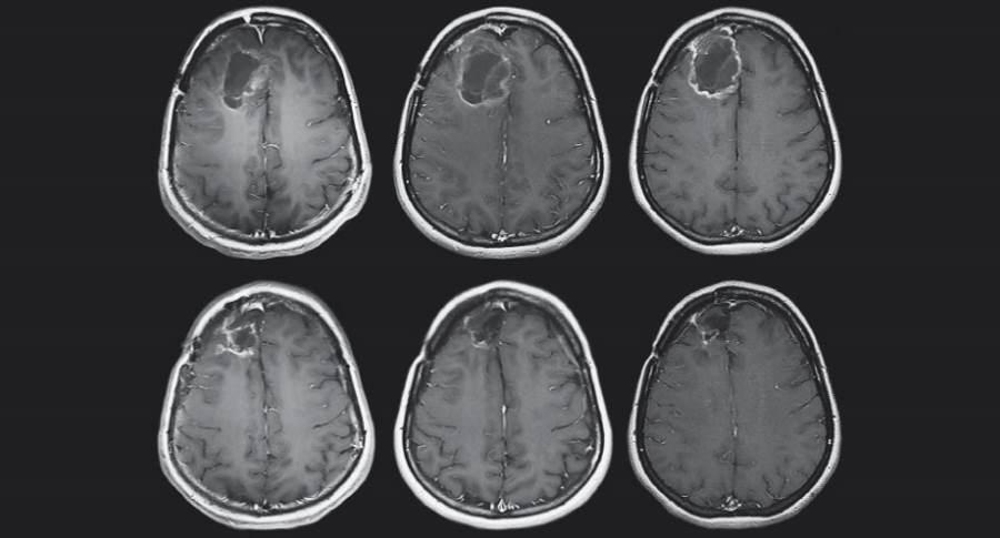 Obraz mózgu MRI