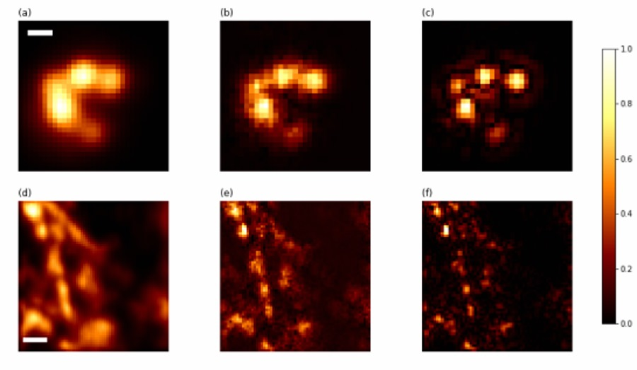 Kwantowy obraz próbki biologicznej uzyskany metodą Q-ISM