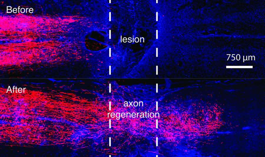 Regeneracja aksonów