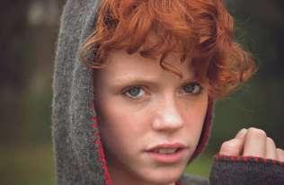 Dlaczego osoby o rudych włosach wykazują zmienioną wrażliwość na ból?