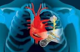 Urządzenia biomedyczne zasilane przez bicie serca