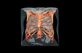 Uszkodzenia płuc u pacjenta z koronawirusem na filmie 3D