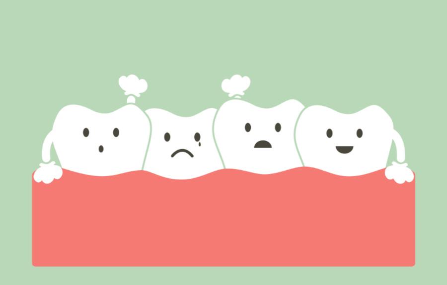 Stłoczenie zębów – przyczyny, sposoby leczenia