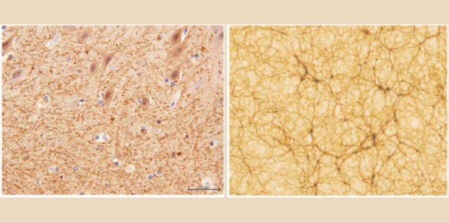 Dziwne podobieństwa między ludzkim mózgiem i Wszechświatem