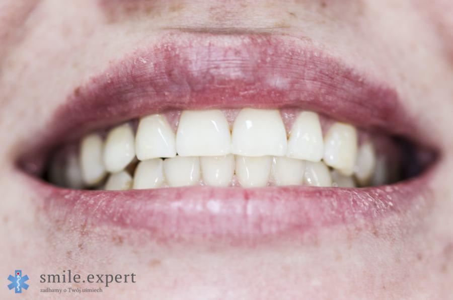 Wybielanie zębów - numer jeden w kategorii olśniewającego uśmiechu