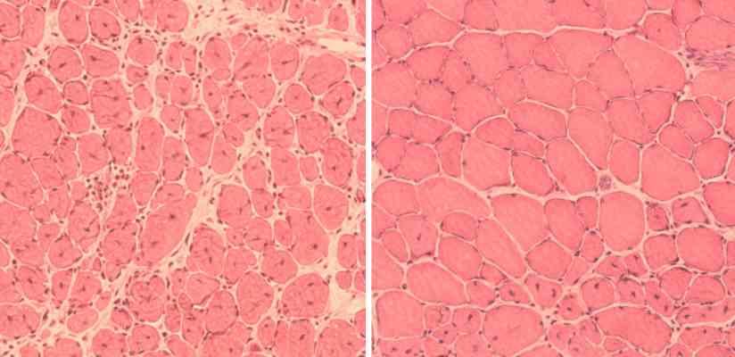 Komórki mięśniowe myszy, starzejące się polewej iodmłodzone poprawej, Fot.Juan Carlos Izpisua Belmonte Lab/Salk Institute