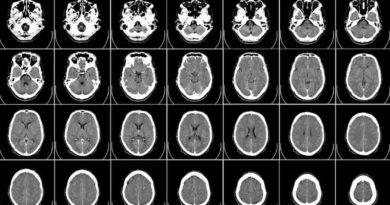 Szwedzi opracowali nową metodę leczenia choroby Parkinsona
